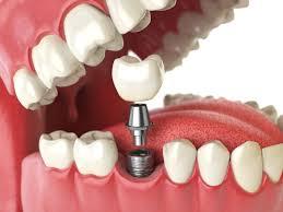 Протезирование или имплантация: что лучше для ваших зубов